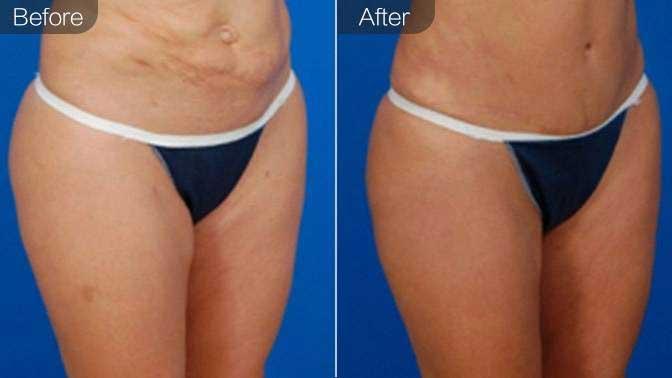 自体脂肪修复前后对比效果图
