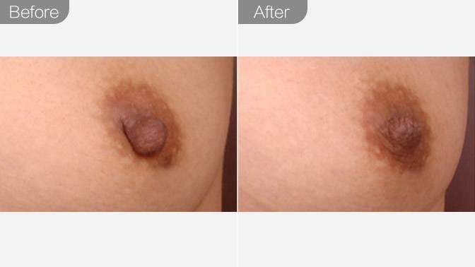 乳头缩小前后对比效果图