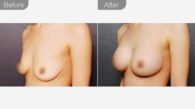 乳房下垂矫正效果图