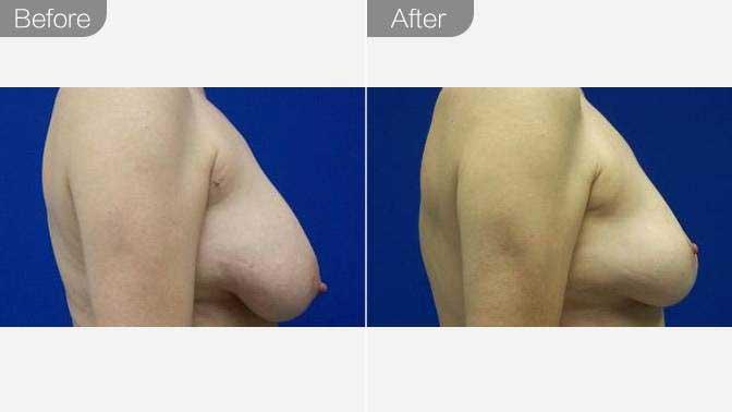女性巨乳缩小前后对比效果图