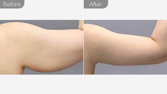 吸脂瘦手臂前后对比效果图
