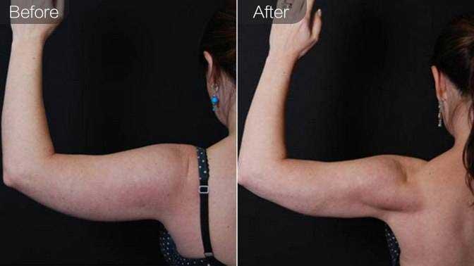 超声溶脂瘦手臂前后对比效果图