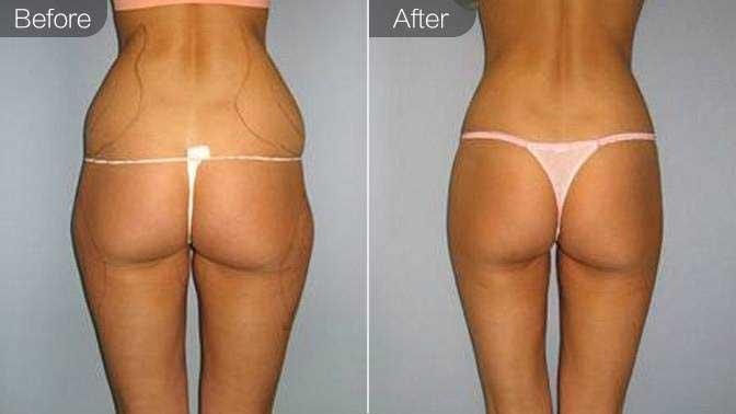 射频溶脂瘦臀部前后对比效果图