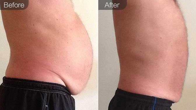 冷冻溶脂瘦腰腹前后对比效果图