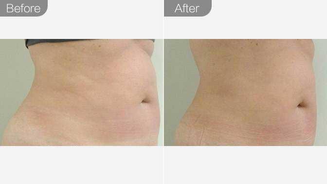 超声溶脂瘦腰腹前后对比效果图