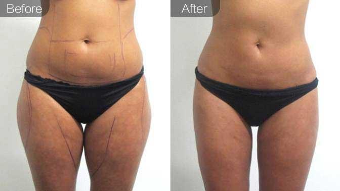 超声溶脂瘦大腿前后对比效果图