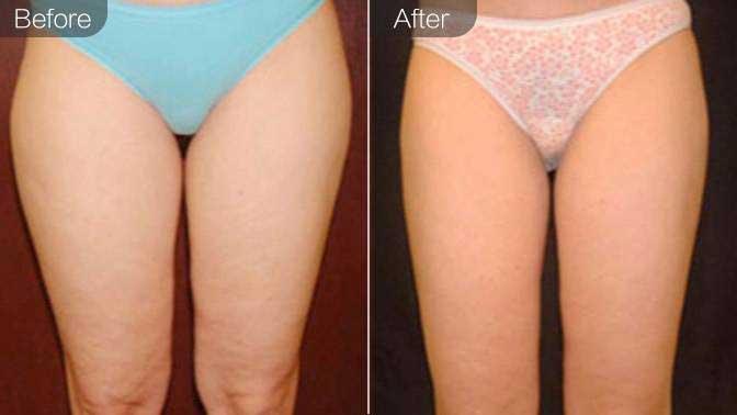 射频溶脂瘦大腿前后对比效果图