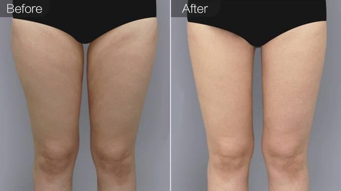 吸脂瘦大腿前后效果对比图