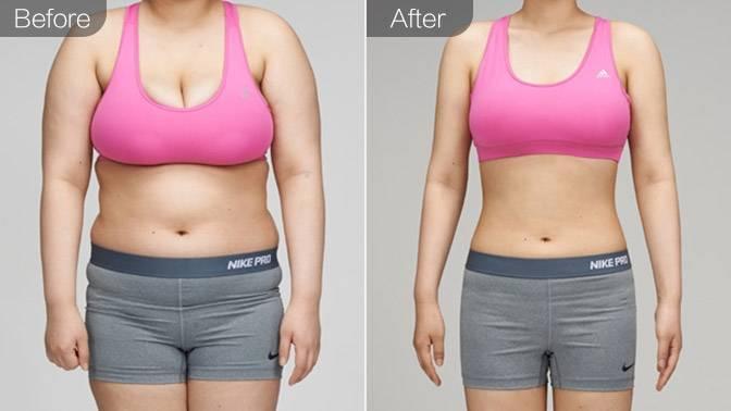 吸脂瘦全身前后对比效果图