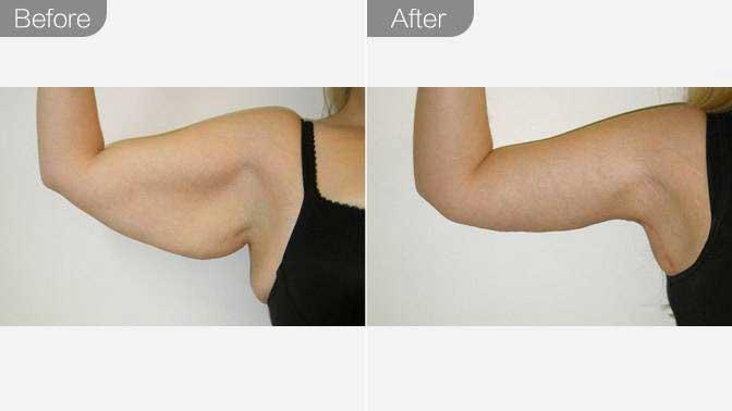 冷冻溶脂瘦手臂前后对比效果图