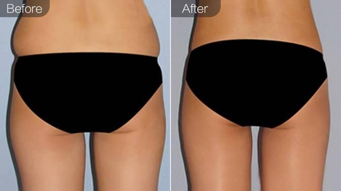 吸脂瘦臀部前后效果对比图