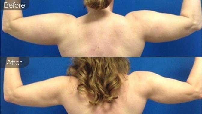 隔空溶脂瘦肩膀前后对比效果图