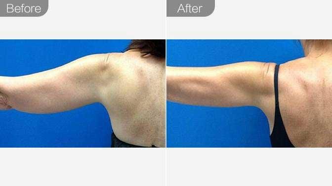 冷冻溶脂瘦肩膀前后对比效果图