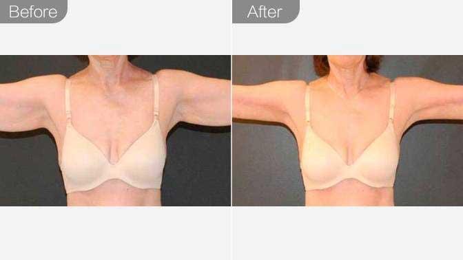 吸脂瘦肩膀前后对比效果图