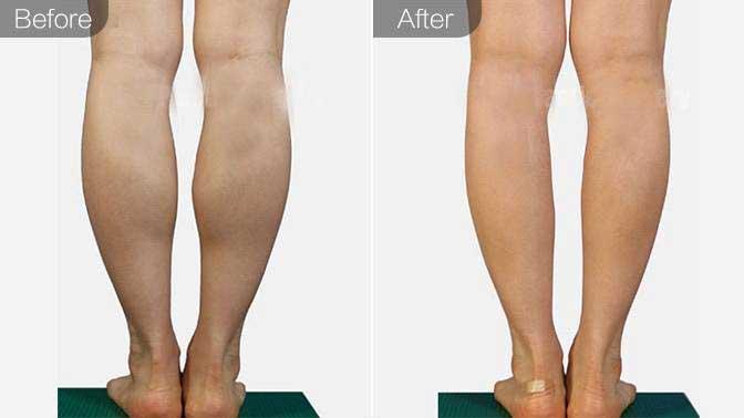 小腿神经阻断术前后对比效果图