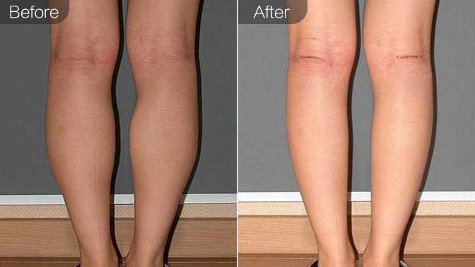 超声溶脂瘦小腿前后对比效果图