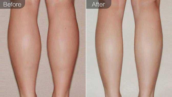 吸脂瘦小腿前后效果对比图