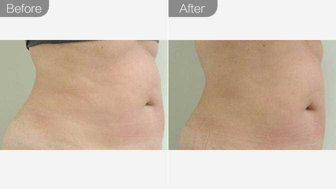 针灸减肥前后对比效果图