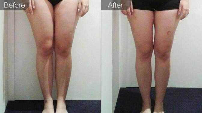 射频溶脂瘦小腿前后对比效果图