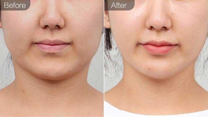 PRP自体血清美肤前后对比效果图