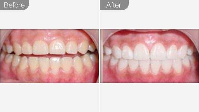超声波洗牙前后效果对比图