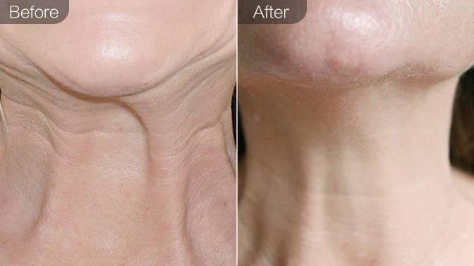 嗨体去颈纹前后对比效果图