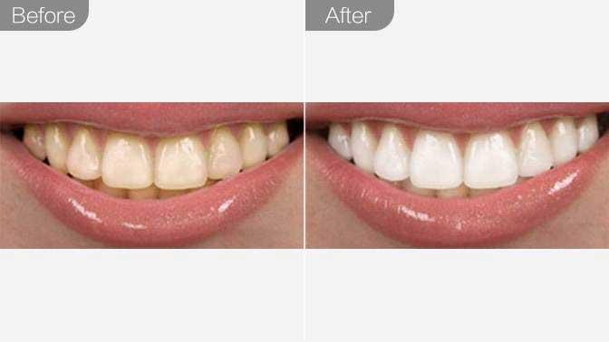纯钛烤瓷牙前后效果对比图