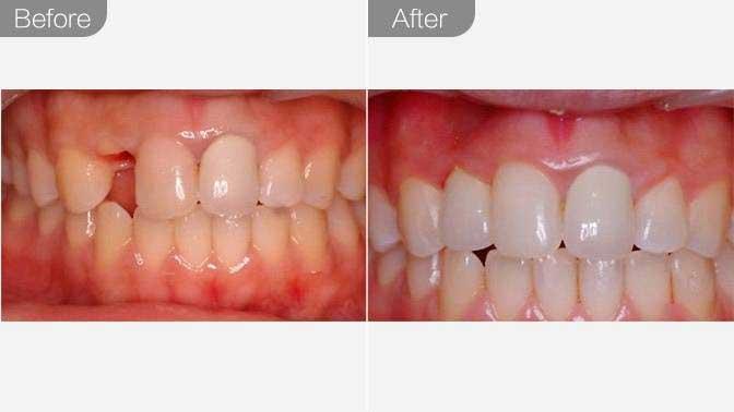 牙齿种植前后对比效果图