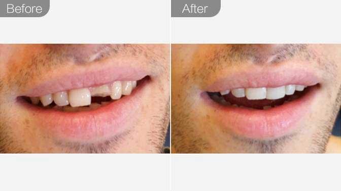补牙前后对比效果图