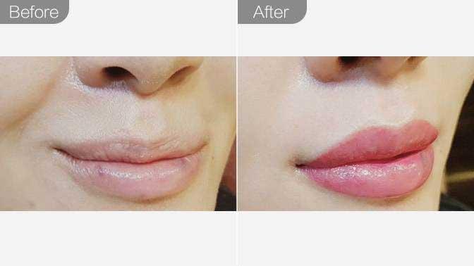 半永久纹唇前后对比效果图