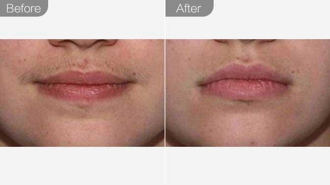 脱唇毛前后对比效果图