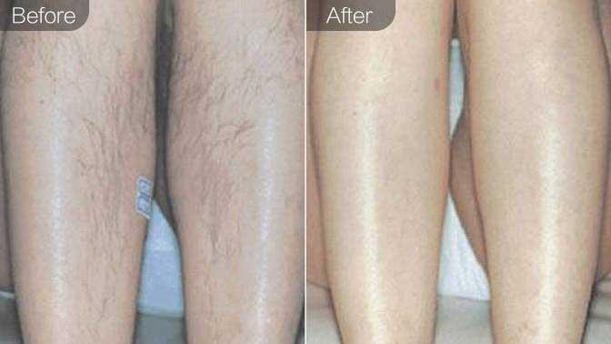 脱腿毛前后对比效果图
