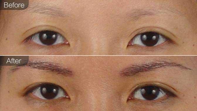 眉毛种植前后对比效果图