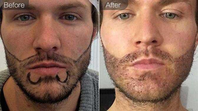 胡须种植前后对比效果图