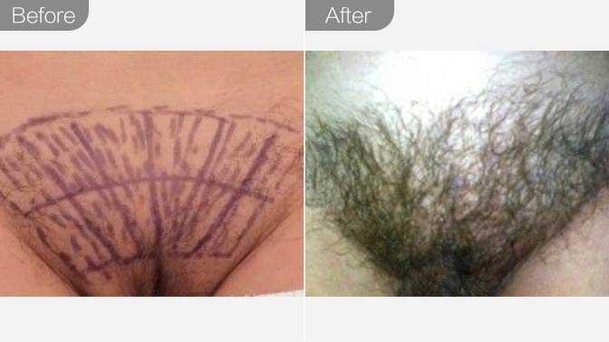 私密毛发种植效果图