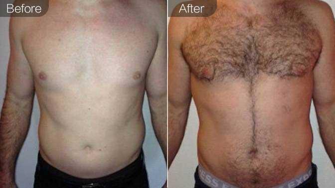 胸毛种植前后对比效果图