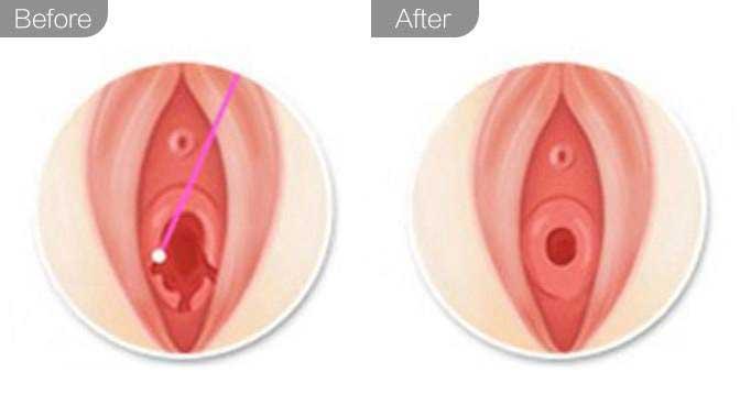 处女膜修复前后对比效果图