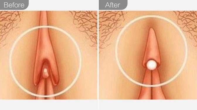 阴蒂整形前后对比效果图