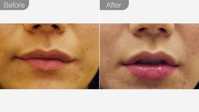 玻尿酸丰唇前后效果对比图