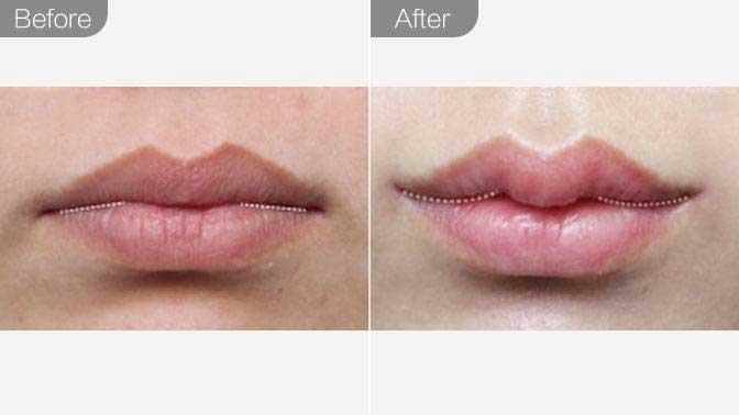 玻尿酸丰唇珠前后对比效果图