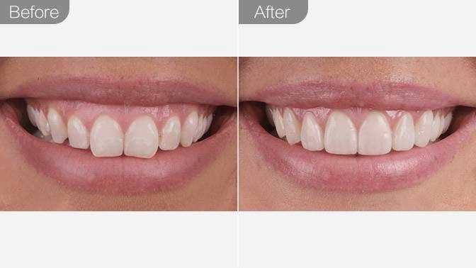 手术去露龈笑前后对比效果图