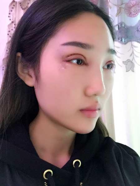 藤井樹的双眼皮修复术前照