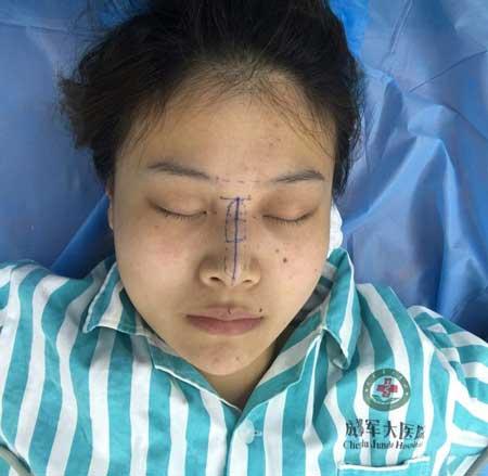 小可爱与小领带的硅胶假体隆鼻术前照