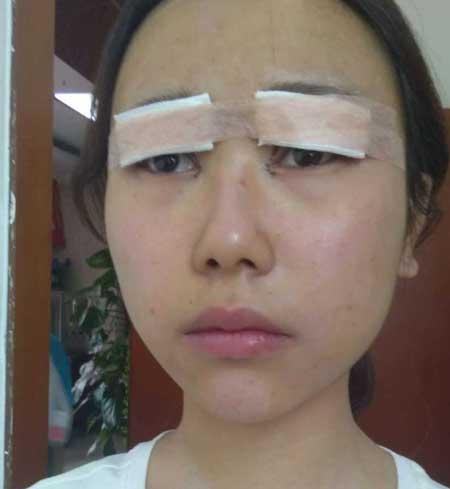 超人女孩的眼综合整形术前照