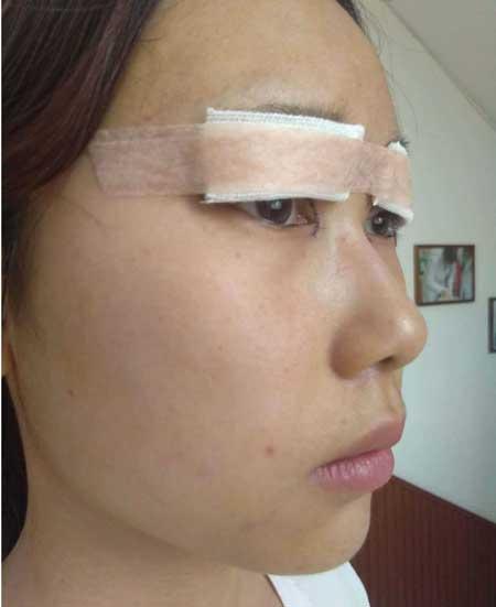 眼综合整形手术后