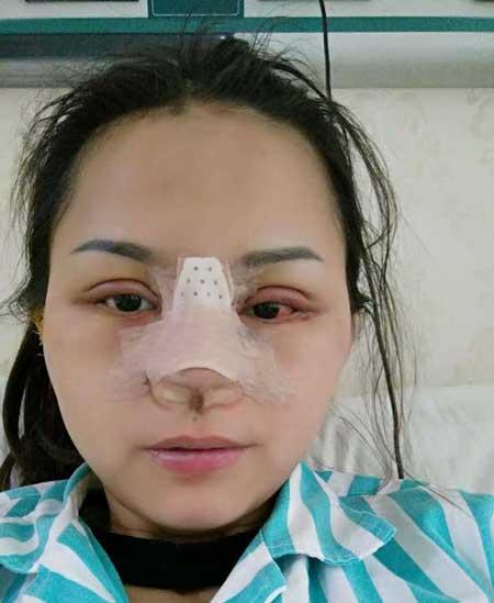 鼻综合整形+双眼皮术后第7天