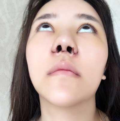 鼻综合整形术后第3天