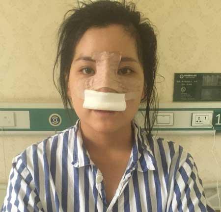 鼻综合整形手术后