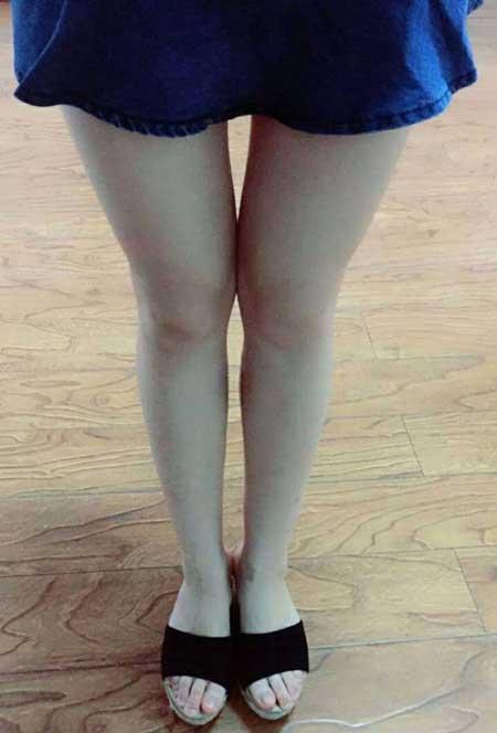 肉毒素瘦小腿术后8天