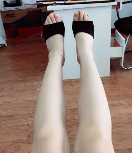 肉毒素瘦小腿术后半个月